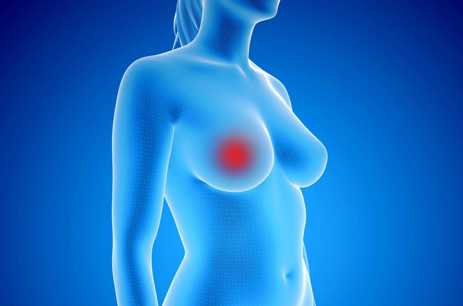 Tumor Marker Assay Helps Identify the Recurrence of Breast Cancer