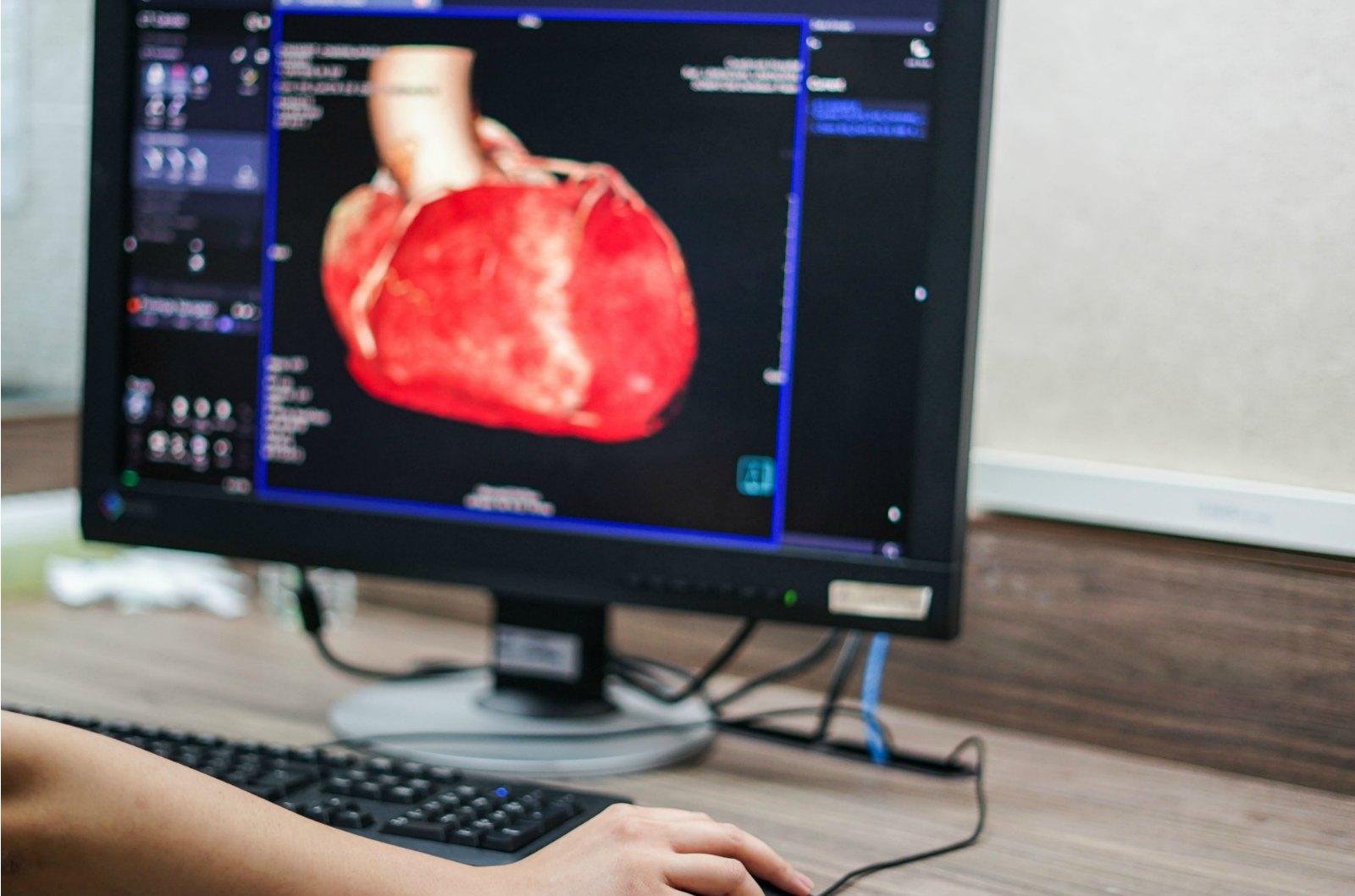 The Tell-Tale Heart: Emory's Cardiac Toolbox