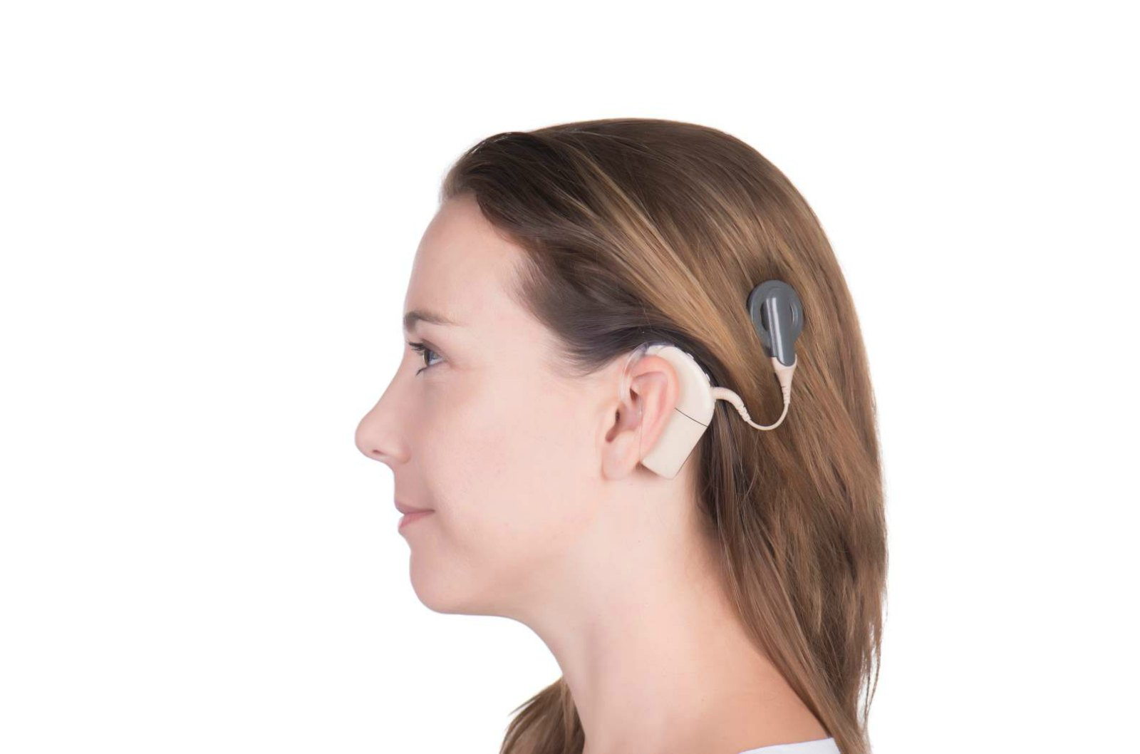 Cochlear Implant Brings Sound and Language to Thousands