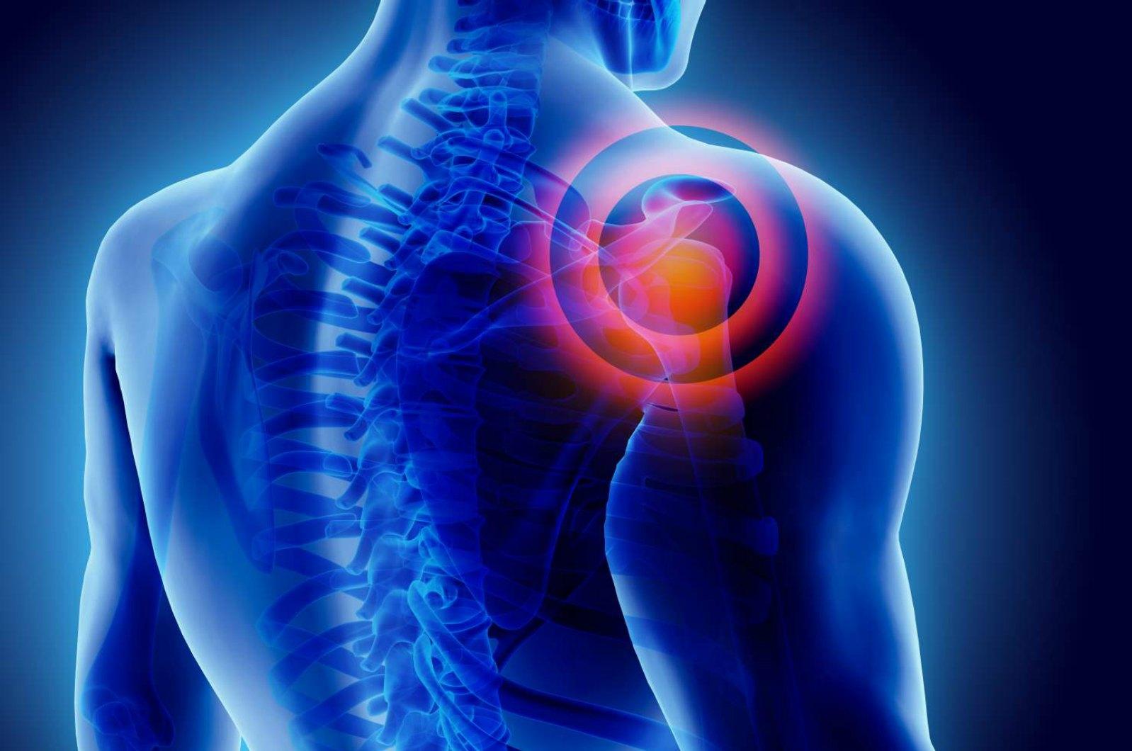 Shoulder prosthesis providing full range of motion