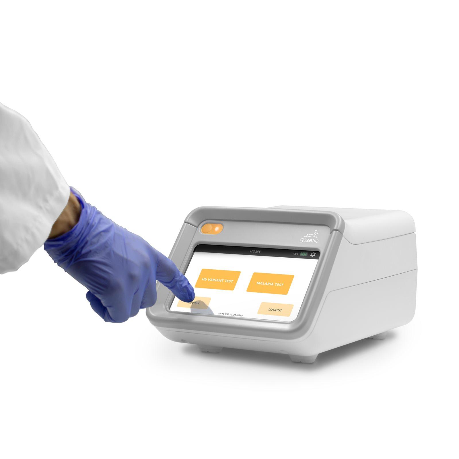 Case Western Reserve University Licenses Rapid Malaria, Hemoglobin Disorder Tests